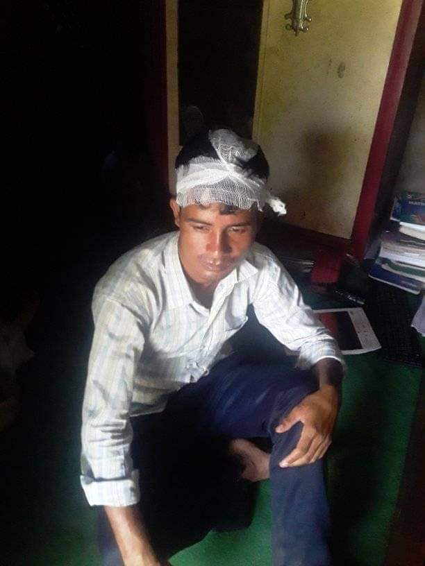 Correspondent Thapa attacked brutally