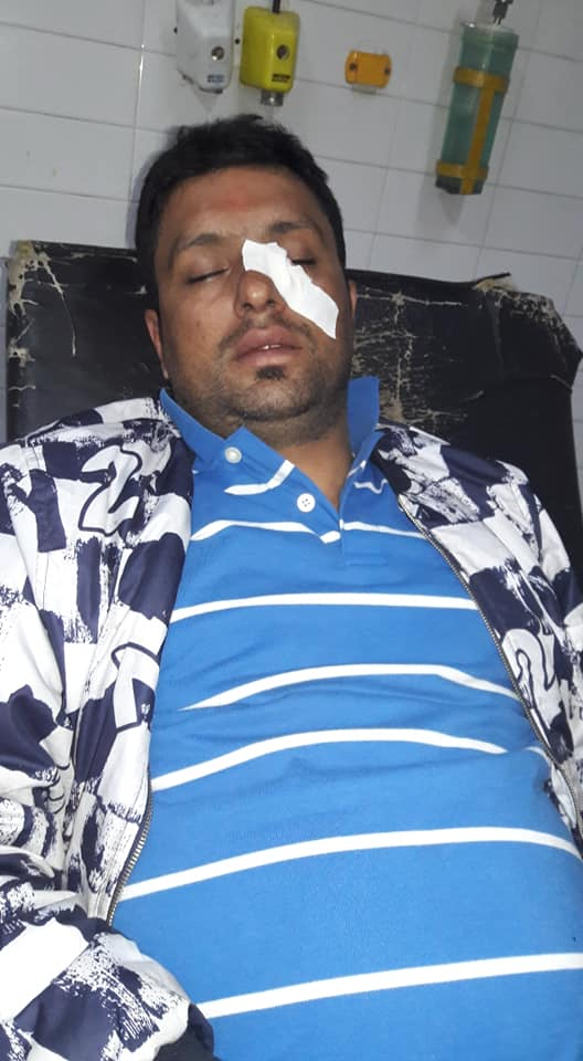 Reporter Kafle injured in brutal attack; FF demands rigorous punishment to assaulters