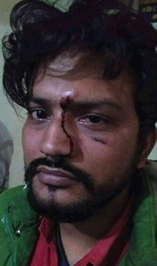Ruling party member Bishwakarma attacks journalist by mobilizing goons